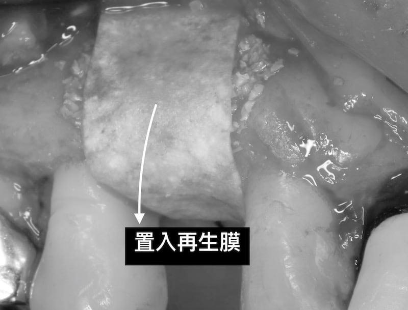 牙周病植牙-人工植牙-數位導航植牙-鎮靜植牙手術-植牙補骨-用再生膜保護補骨區