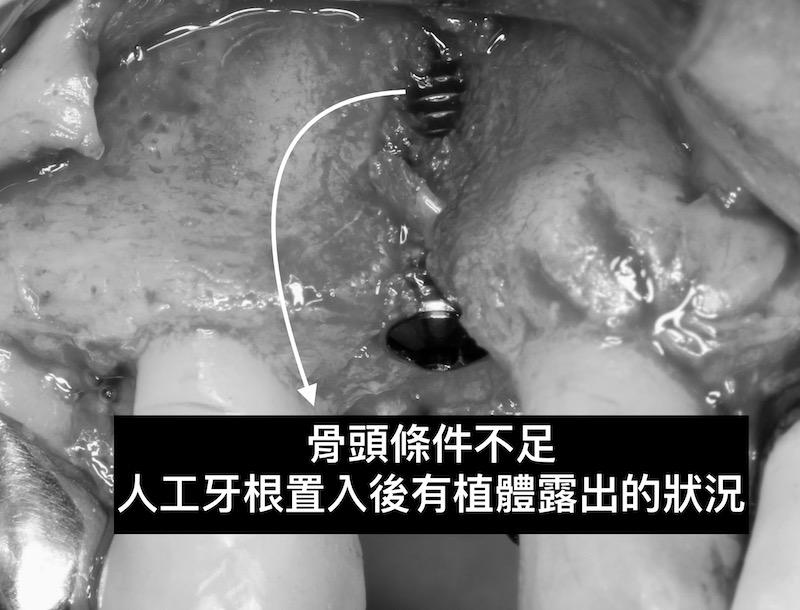 牙周病植牙-人工植牙-數位導航植牙-鎮靜植牙手術-植牙補骨-若骨頭條件不佳-牙根置入後會有植體露出