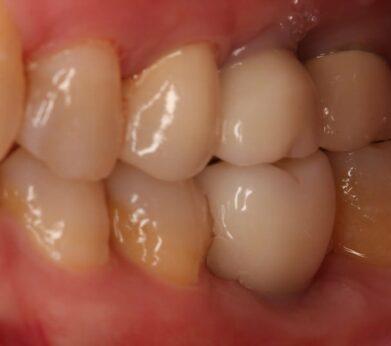 牙周病植牙-人工植牙-數位導航植牙-鎮靜植牙手術-經鼻竇提升術補骨後人工植牙-假牙完成