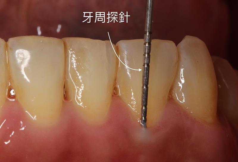 牙周病檢查-牙周探針-測量牙周囊袋