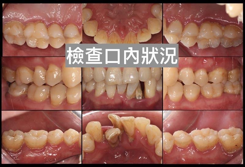 牙周病治療前臨床照片-檢查口內狀況-牙周病第一階段治療