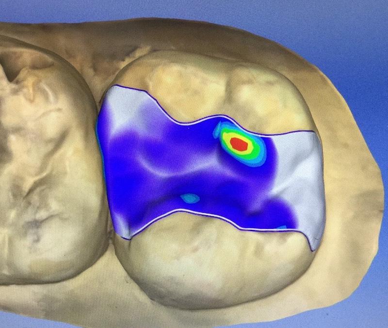 牙周病治療-陶瓷貼片-全瓷冠-數位牙科-CAD電腦輔助-模擬設計修復-中壢-桃園-葉立維醫師