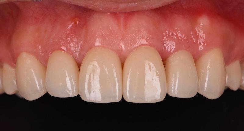 牙周病治療-陶瓷貼片-數位牙科-牙周手術後-牙冠增長術-中壢-桃園-葉立維醫師