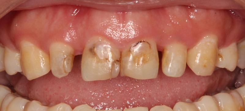 牙周病治療-陶瓷貼片-數位牙科-牙周手術前-中壢-桃園-葉立維醫師