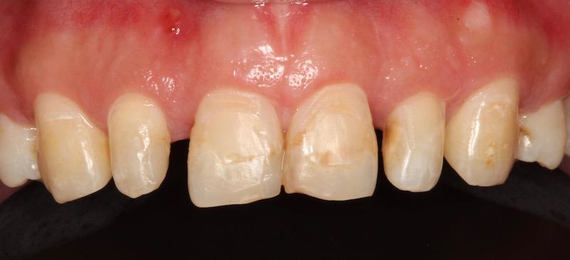 牙周病治療-陶瓷貼片-數位牙科-牙周手術-牙冠增長術-中壢-桃園-葉立維醫師