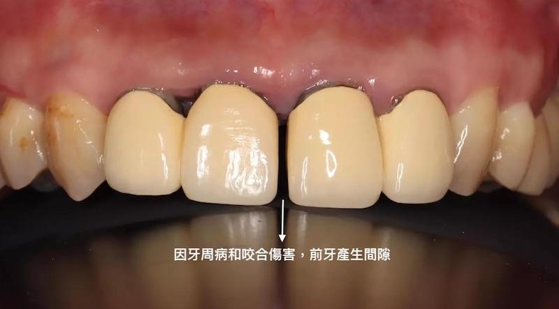 牙周病治療-陶瓷貼片-全瓷冠-數位牙科-治療前-門牙牙縫大-中壢-桃園-葉立維醫師