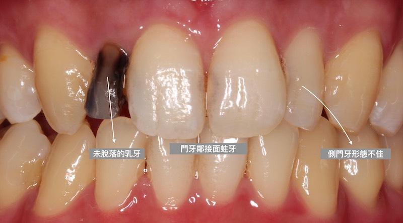 牙周病治療-陶瓷貼片-數位牙科-治療前-門牙蛀牙-牙齒型態不佳-中壢-桃園-葉立維醫師