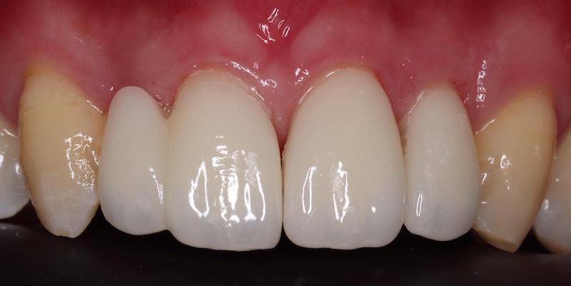 牙周病治療-陶瓷貼片-數位牙科-治療後-全瓷貼片-修復前牙美觀-中壢-桃園-葉立維醫師