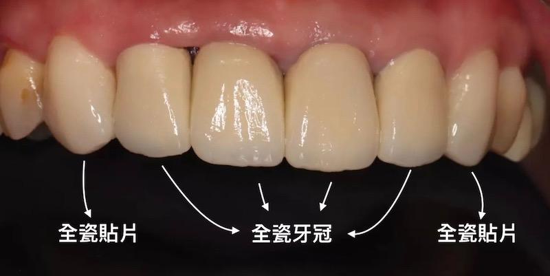 牙周病治療-陶瓷貼片-全瓷冠-數位牙科-治療後-修復門牙牙縫大-中壢-桃園-葉立維醫師