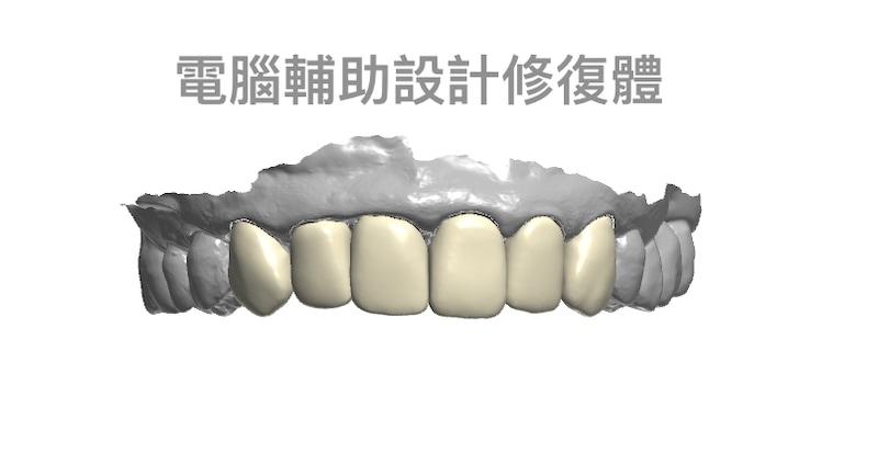 牙周病治療-陶瓷貼片-全瓷冠-數位牙科-治療中-DSD數位微笑設計-中壢-桃園-葉立維醫師