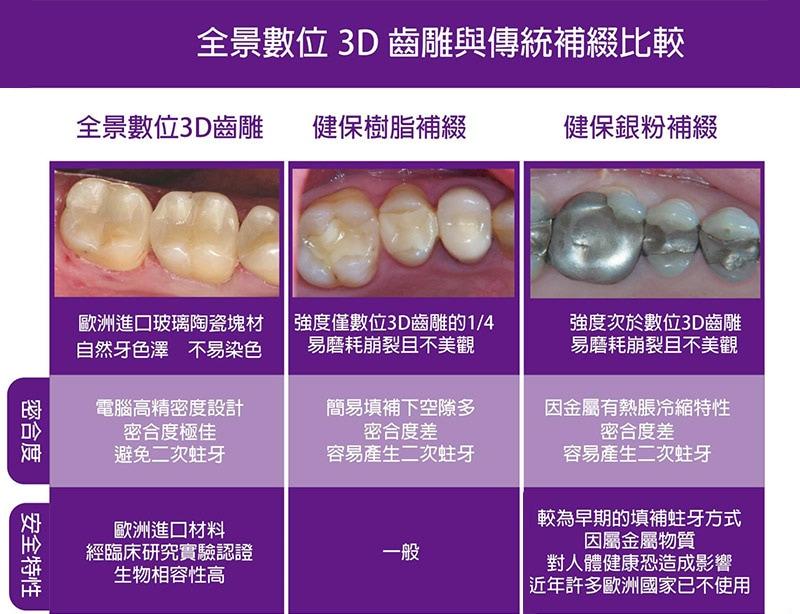 牙周病-治療-數位牙科-陶瓷貼片-全瓷冠-數位牙科與全瓷修復-全瓷修復3D齒雕與傳統補綴的比較