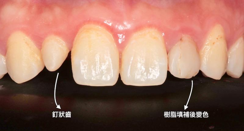 牙周病治療-陶瓷貼片-數位牙科-治療前-釘狀齒-補牙變色-中壢-桃園-葉立維醫師