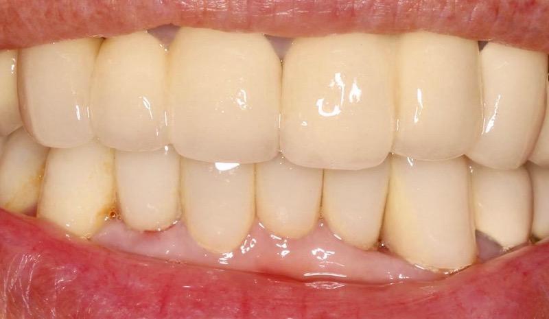 牙周病治療-陶瓷貼片-全瓷冠-數位牙科-治療後-中壢-桃園-葉立維醫師