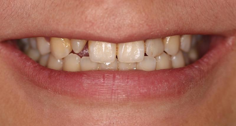牙周病治療-陶瓷貼片-數位牙科-治療前-前牙咬合-中壢-桃園-葉立維醫師