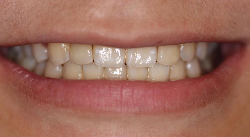 牙周病治療-陶瓷貼片-數位牙科-治療後-前牙咬合-中壢-桃園-葉立維醫師