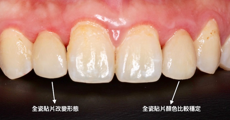 牙周病治療-陶瓷貼片-數位牙科-治療後-中壢-桃園-葉立維醫師