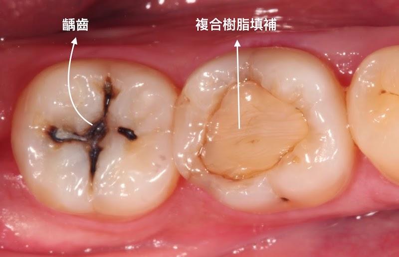 牙周病-治療-數位牙科-陶瓷貼片-全瓷冠-數位牙科與全瓷修復-齲齒採傳統補綴-樹脂填補