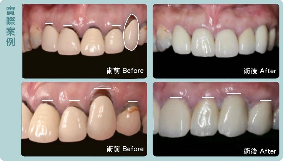 牙根覆蓋術-案例-更換假牙-牙周美容-牙周整形手術