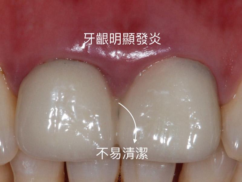 牙齦發炎-生物寬度-牙冠增長術