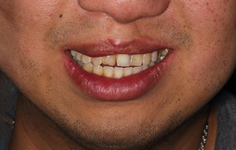 牙齒顏色不一-牙齒長度不一-門牙有縫-瓷牙貼片療程前