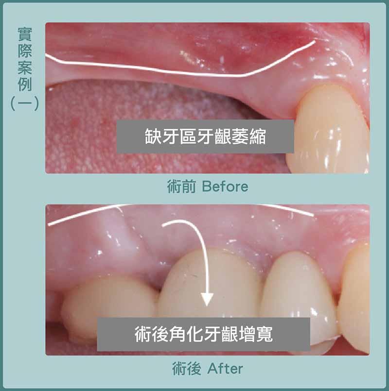 缺牙-牙齦凹陷-牙齦萎縮補肉-游離牙齦移植術-手術前後比較-葉立維醫師-桃園