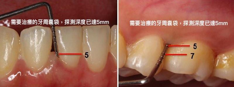 需要治療的牙周囊袋-探測深度已達5mm-不易清潔乾淨.jpg