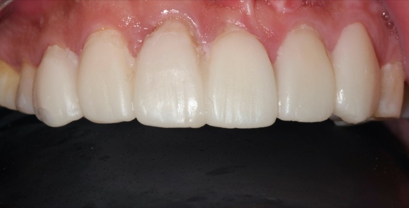 DSD數位微笑設計-試戴用的臨時樹脂貼片