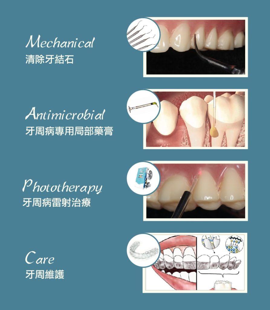 MAPCare牙周病專科治療方案-牙周病專科醫師為牙周病設計的專屬治療程序-桃園當代牙醫