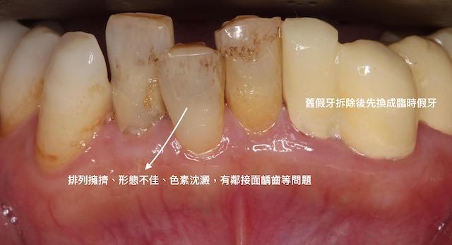 牙周病治療前-前牙下顎-排列不整-鄰接面蛀牙-假牙邊緣不密合-先拆除換為臨時假牙