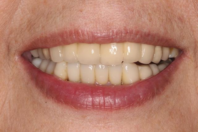 全瓷美學-修正染色-蛀牙-牙齒不整-完成後的笑容
