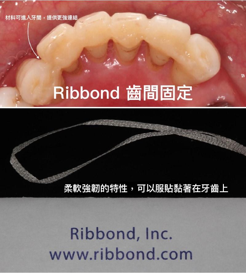 Ribbond-齒間固定材料-降低牙齒搖晃程度-齒間固定術