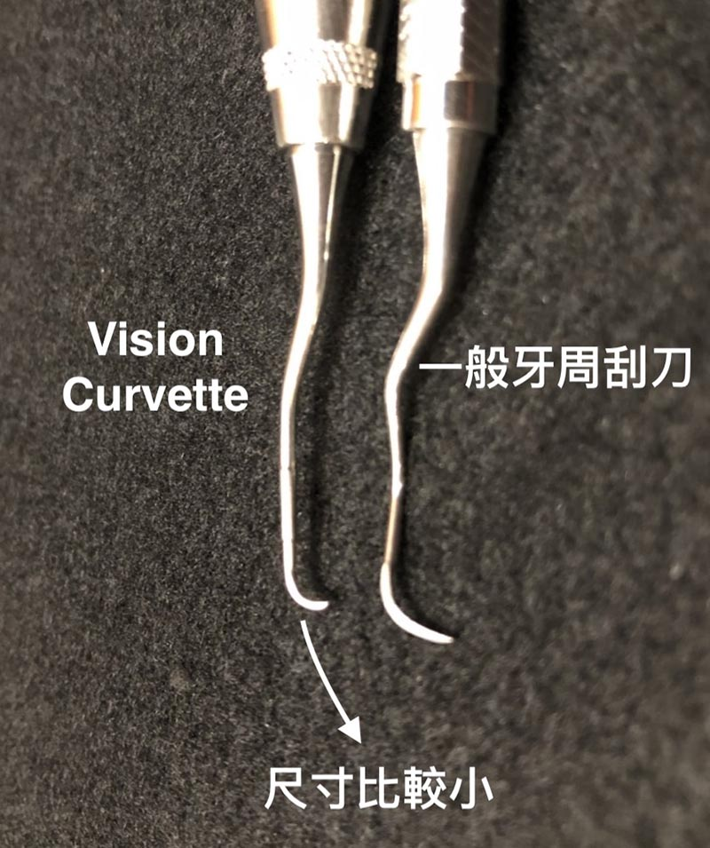 Vision Curvette牙周刮刀-尺寸為傳統牙周刮刀的一半-深入牙周囊袋-牙結石清創
