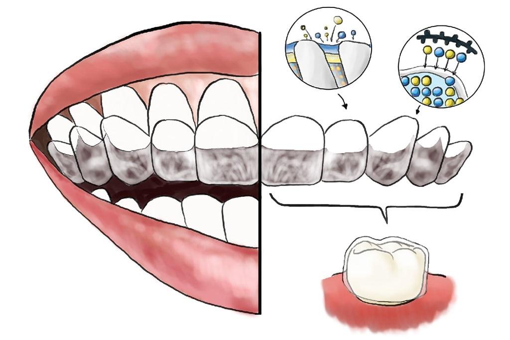 mapcare牙周病治療方案-牙周病治療第一階段-Care-牙周維護-客製化多功能牙托-氟托-修復牙齒敏感
