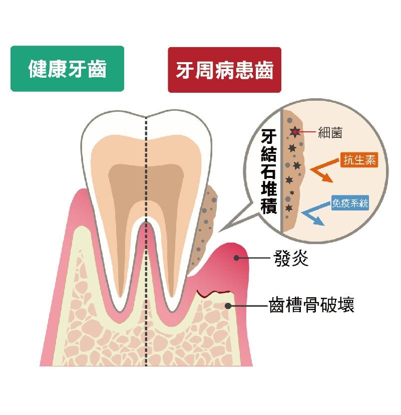 健康牙齒-牙周病患齒-齒槽骨破壞-牙周囊袋-桃園牙周病-葉立維醫師