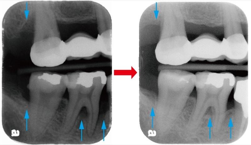 嚴重牙周病不拔牙-牙周再生手術-術前術後-右側後牙區-X光片-骨頭再生