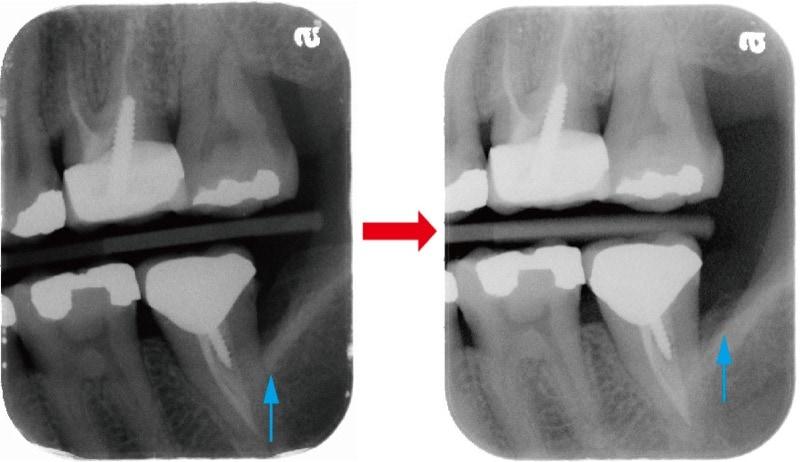 嚴重牙周病不拔牙-牙周再生手術-術前術後-左側後牙區-X光片-骨頭再生