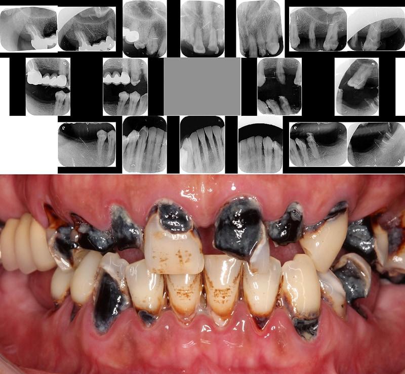嚴重牙周病經驗治療案例-全口嚴重牙周病-口腔與牙齒X光照