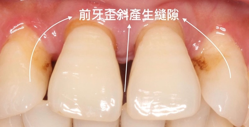 嚴重牙周病經驗治療案例-前牙歪斜產生縫隙-病理性位移