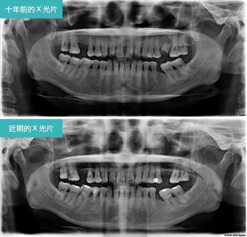 嚴重牙周病經驗治療案例-十年前後環口X光片