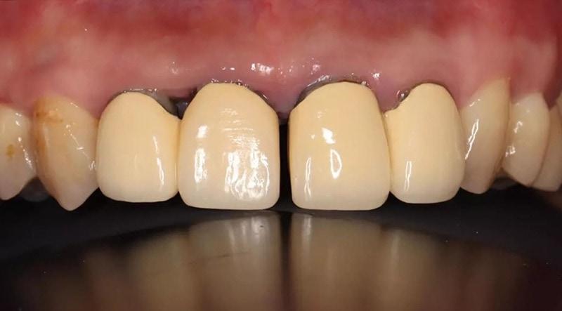 嚴重牙周病經驗治療案例-後牙缺牙-前牙假牙病理性位移