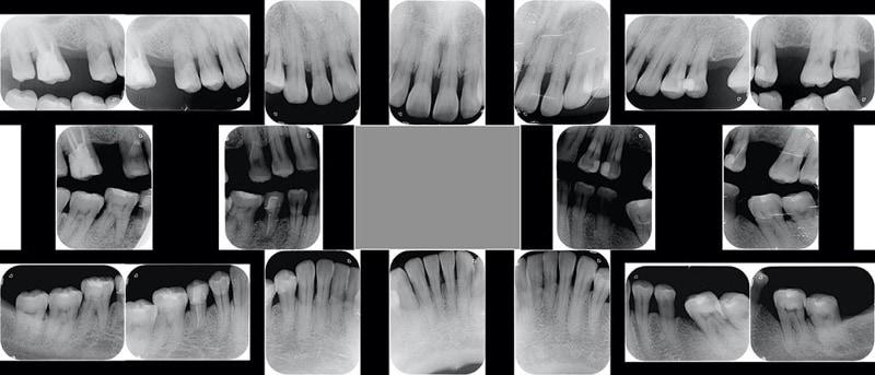 嚴重牙周病經驗治療案例-治療前-各角度口腔內X光照
