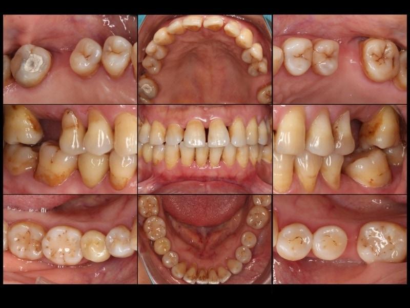 嚴重牙周病經驗治療案例-治療前-各角度牙齒近照