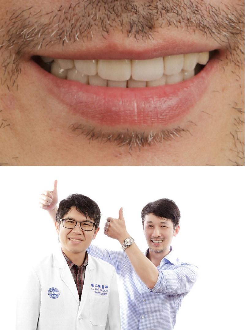 嚴重牙周病治療-無拔牙治療-患者與葉立維醫師的滿意合照