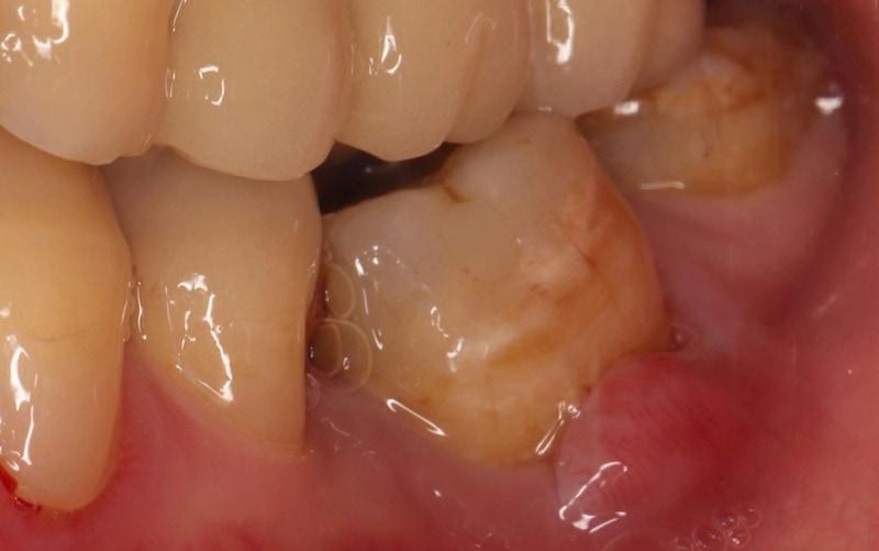 嚴重牙周病經驗治療經驗案例-左下臼齒牙齦腫脹