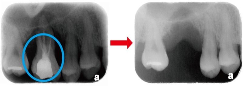 嚴重牙周病-牙周病拔牙-缺牙-X光片-牙周翻瓣手術案例