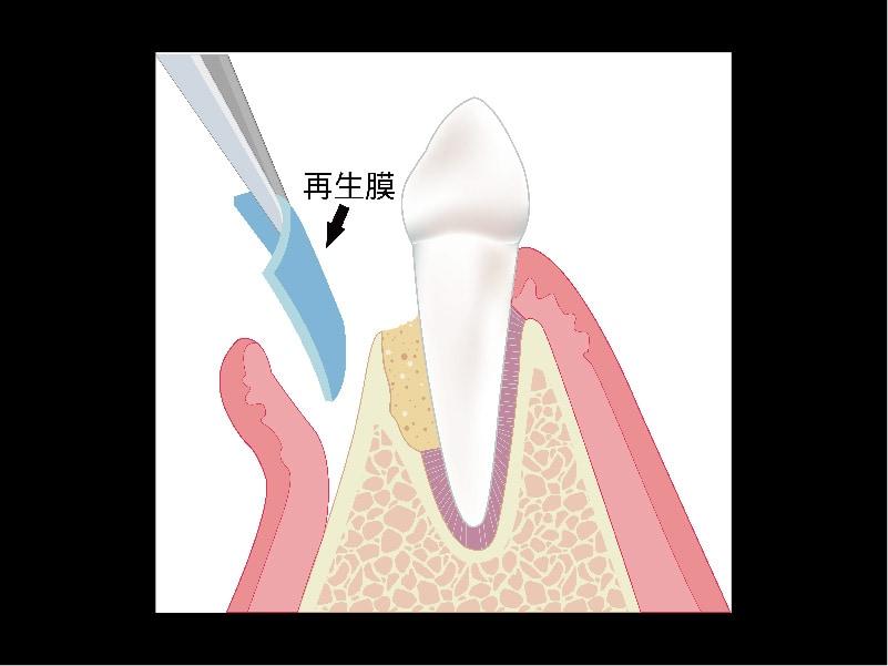 牙周再生手術-再生原理圖-再生膜-葉立維醫師-桃園牙周病