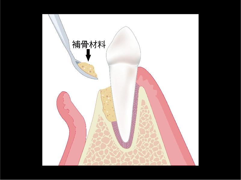 牙周再生手術-再生原理圖-補骨粉-葉立維醫師-桃園牙周病