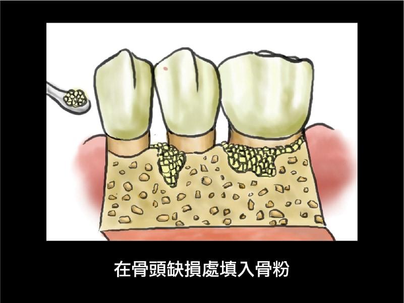 牙周再生手術-牙周補骨粉-牙周病手術-葉立維醫師-桃園牙周病