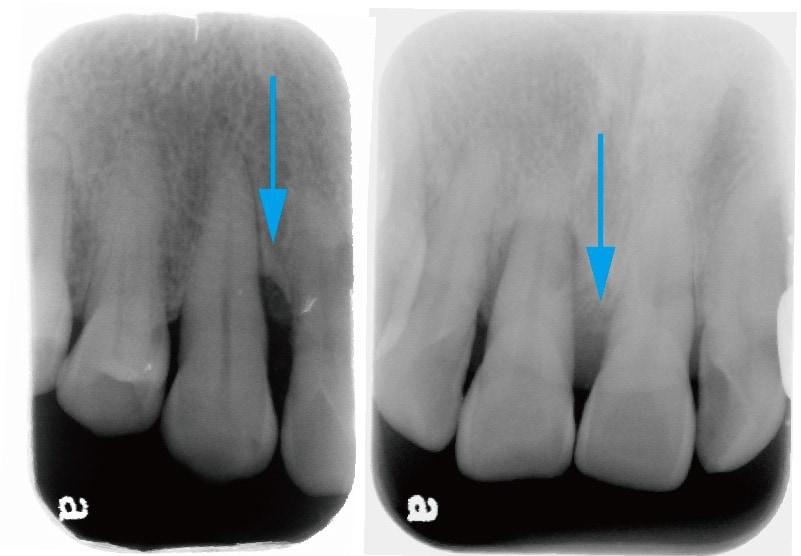 牙周再生手術-術前-X光片-骨頭缺損處