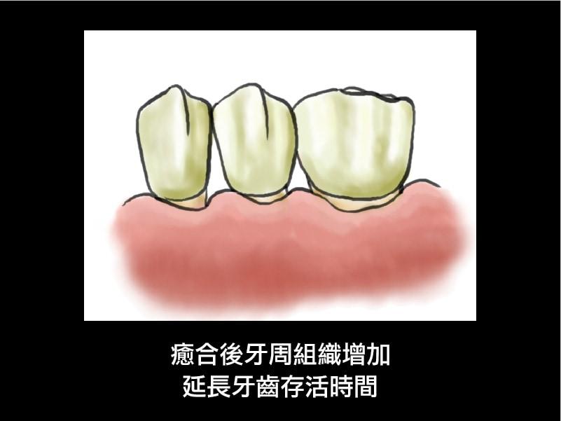牙周再生手術-術後-延長牙齒壽命-牙周病手術-葉立維醫師-桃園牙周病